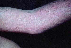 Le microorganisme végétal les ongles liode