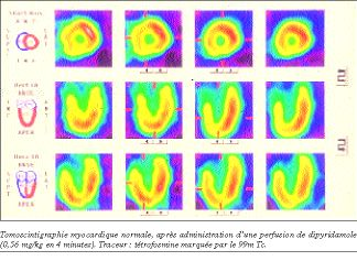 Scintigraphie Myocardique Avec Test Au Dipyridamole Citalopram