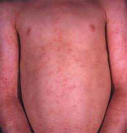 Atopitchesky la dermatite du domaine inguinal