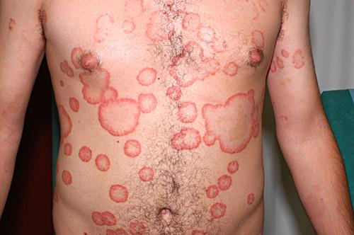 Les produits permis à atopitcheskom la dermatite chez les adultes