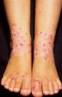 Le psoriasis la maladie la raison de la maladie