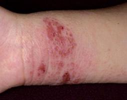 Le psoriasis chronique des pinceaux des mains