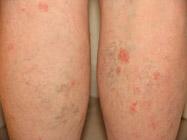 La forme aiguë atopitcheskogo de la dermatite chez lenfant