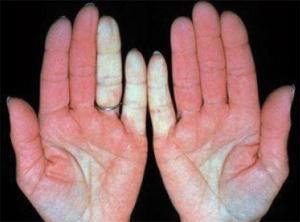 Виды псориаза и их лечение фото, формы и