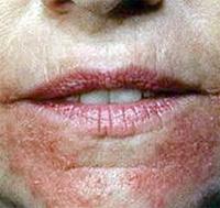 Que lon provoque la maladie le psoriasis