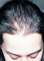 Le masque pour les cheveux compliment oils les rappels