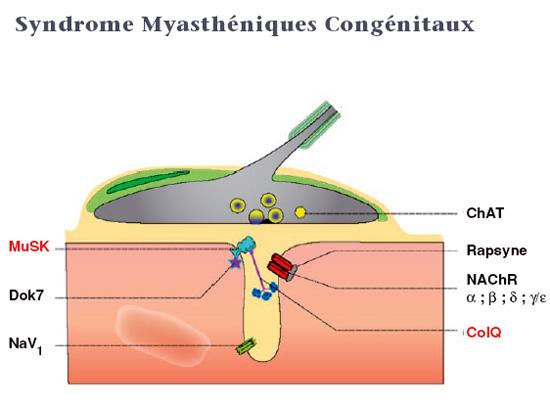 Myasthénie Congénitale - Acheter Brand Levitra 20 Mg Générique
