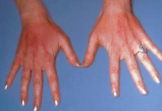 Ivermectin for humans scabies