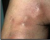 La varicosité des organes génitaux extérieurs et les couches