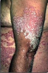 Atopitchesky la dermatite laennek