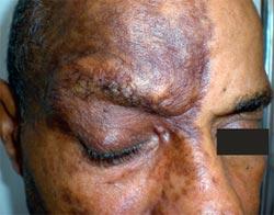 JIM.fr - Le dermatologue devant un zona ophtalmique
