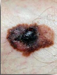 Sur les poitrines la tache en forme du psoriasis