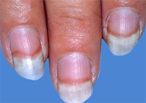 Atopitchesky la dermatite et laromothérapie