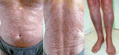 Atopitchesky la dermatite la tête
