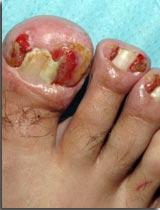 Le microorganisme végétal sur les pieds la diffusion