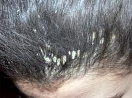 Le traitement du foie au psoriasis
