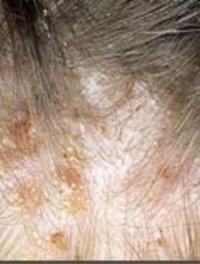 Les noix et le psoriasis
