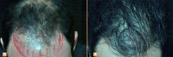 Les masques pour les cheveux de ricin et lhuile de bardane et