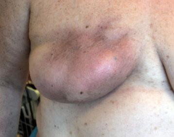 Kriosaouna et le psoriasis les rappels au psoriasis le prix