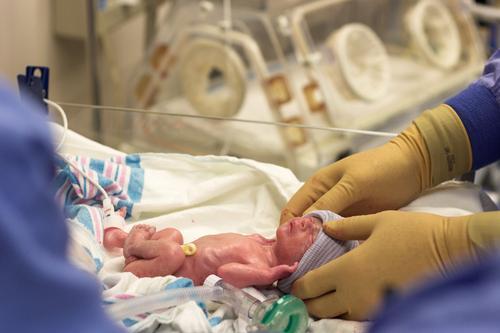 JIM.fr - La présepsine, un nouveau biomarqueur des infections néonatales
