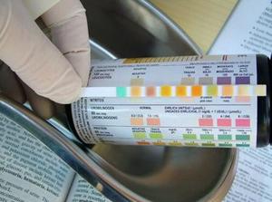 JIM.fr - Enquête sur les infections urinaires de l'enfant : quelques ...