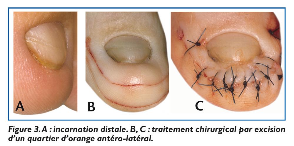 Le microorganisme végétal des ongles le traitement avec le chlore