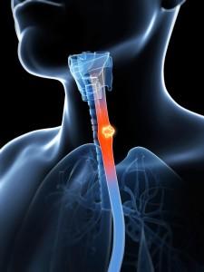 jimfr cancer de l�œsophage de l�int233r234t pronostique