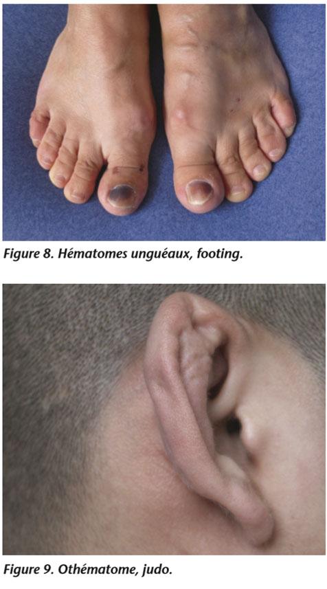 Les taches rouges sur les pieds le psoriasis
