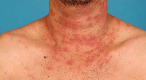 Atopitchesky la dermatite ou le lichen rose