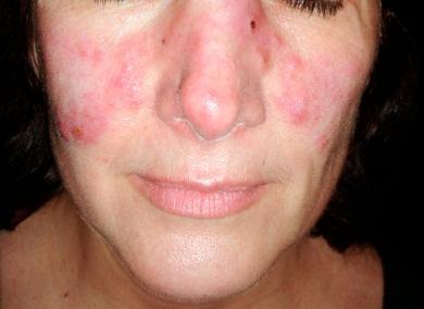 Lichen planus Symptoms, Diagnosis, Treatments and Causes ...