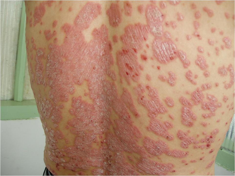 Pourquoi le psoriasis apparaît sur la partie hispide de la tête