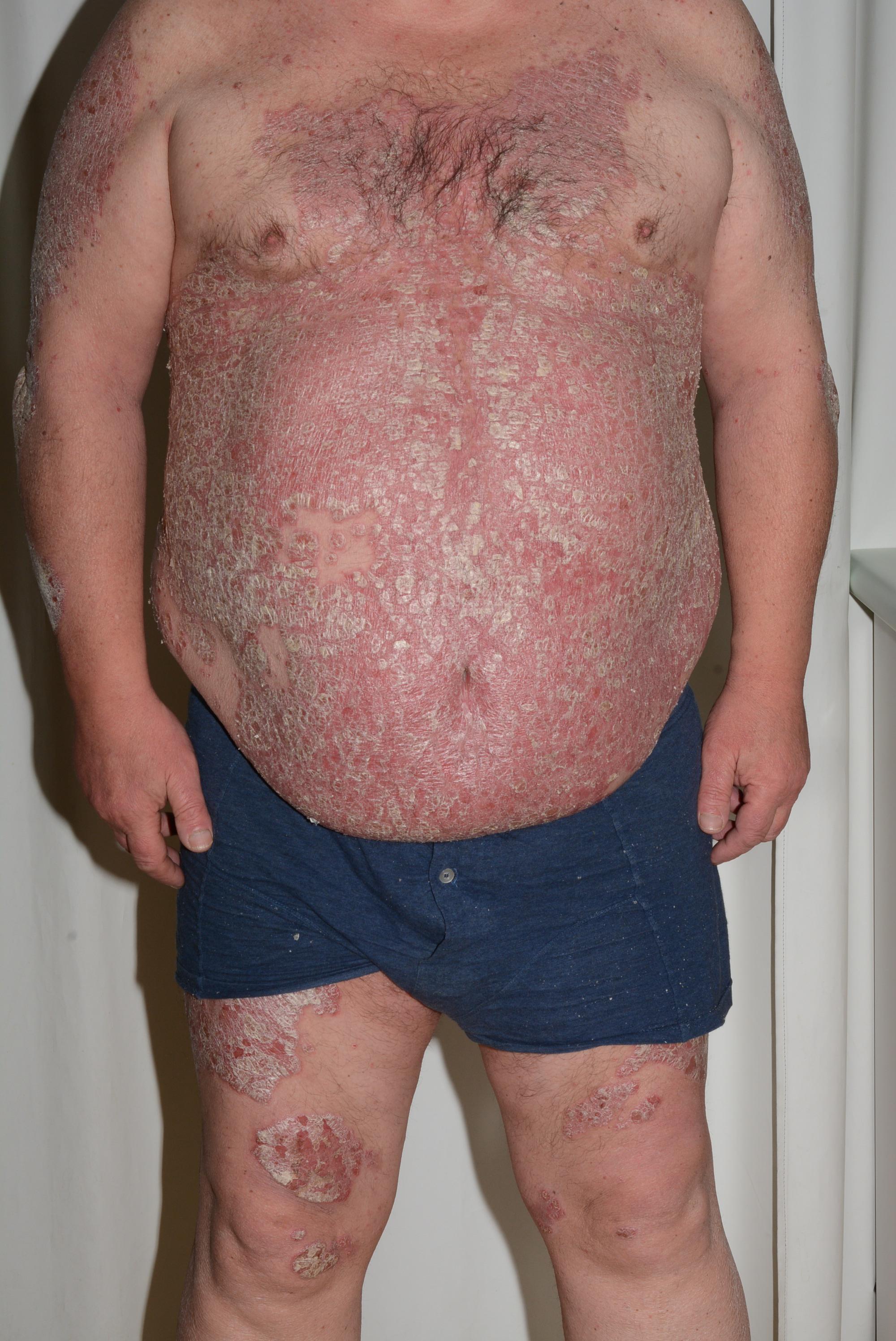 Top 5 Des Remèdes Naturels Contre le Psoriasis