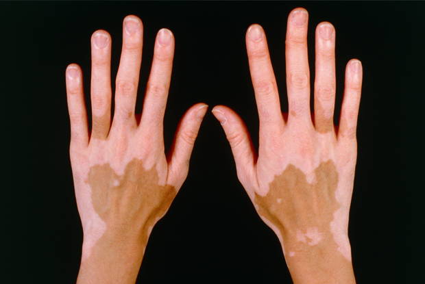 loss of skin pigment after steroid injection