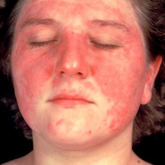 JIM.fr - Des variations d'incidence pour le lupus systémique en Europe
