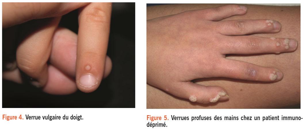 Verrues et molluscums chez l enfant for Infection urinaire et piscine