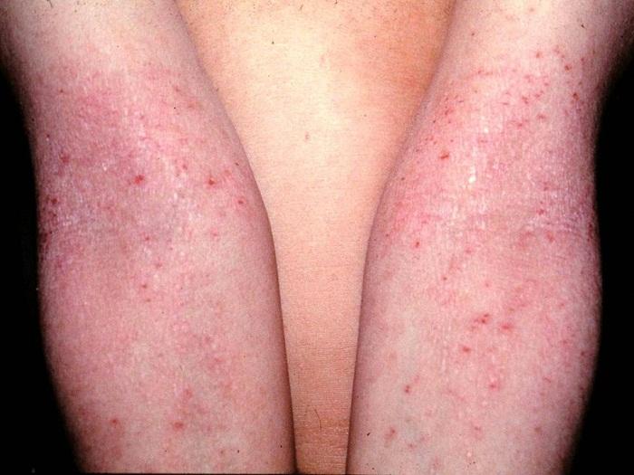 Cura di eczema umido