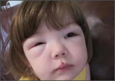 JIM.fr - Syndrome néphrotique idiopathique : traitement court ou ...