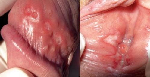 JIM.fr - Herpes genital: situación actual y perspectivas