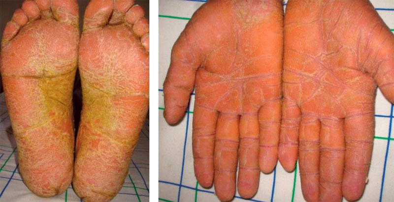 pieds et mains jaunes