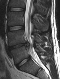 d7e7f28db9defa Oui à la corticothérapie orale dans les sciatiques par hernie discale